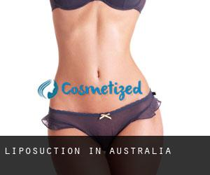 Liposuction in Australia