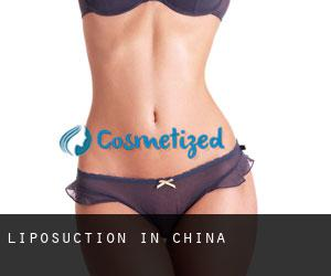Liposuction in China