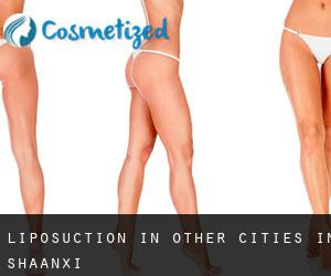 Liposuction in Other Cities in Shaanxi