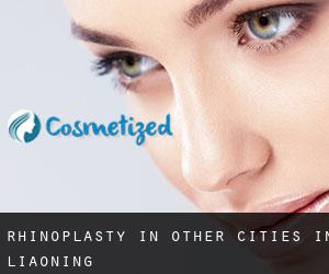 Rhinoplasty in Other Cities in Liaoning